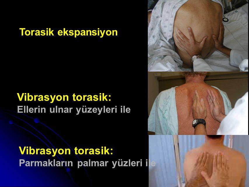 Vibrasyon torasik: Ellerin ulnar yüzeyleri ile Vibrasyon torasik: Parmakların palmar yüzleri ile Torasik ekspansiyon