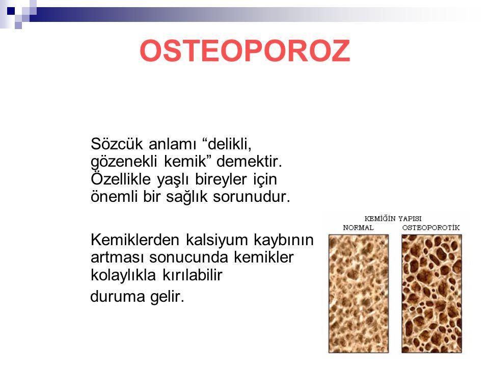 """3 OSTEOPOROZ Sözcük anlamı """"delikli, gözenekli kemik"""" demektir. Özellikle yaşlı bireyler için önemli bir sağlık sorunudur. Kemiklerden kalsiyum kaybın"""