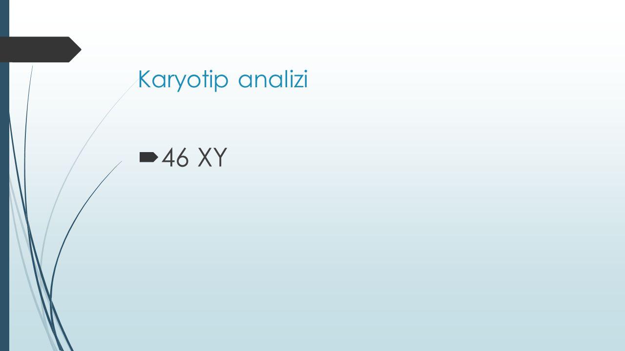 Karyotip analizi  46 XY