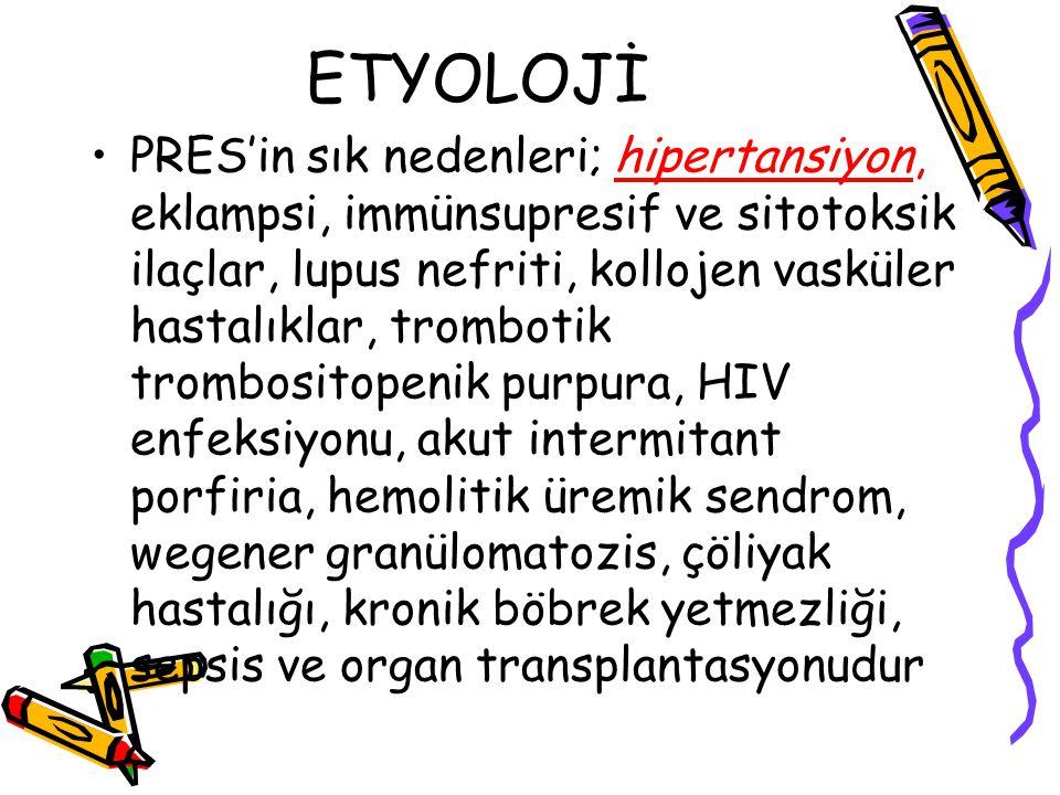 ETYOLOJİ PRES'in sık nedenleri; hipertansiyon, eklampsi, immünsupresif ve sitotoksik ilaçlar, lupus nefriti, kollojen vasküler hastalıklar, trombotik trombositopenik purpura, HIV enfeksiyonu, akut intermitant porfiria, hemolitik üremik sendrom, wegener granülomatozis, çöliyak hastalığı, kronik böbrek yetmezliği, sepsis ve organ transplantasyonudur
