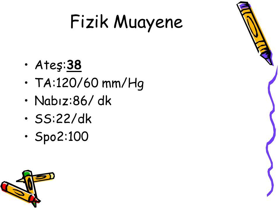 Fizik Muayene Ateş:38 TA:120/60 mm/Hg Nabız:86/ dk SS:22/dk Spo2:100