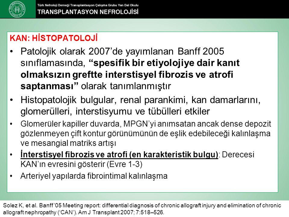 """KAN: HİSTOPATOLOJİ Patolojik olarak 2007'de yayımlanan Banff 2005 sınıflamasında, """"spesifik bir etiyolojiye dair kanıt olmaksızın greftte interstisyel"""