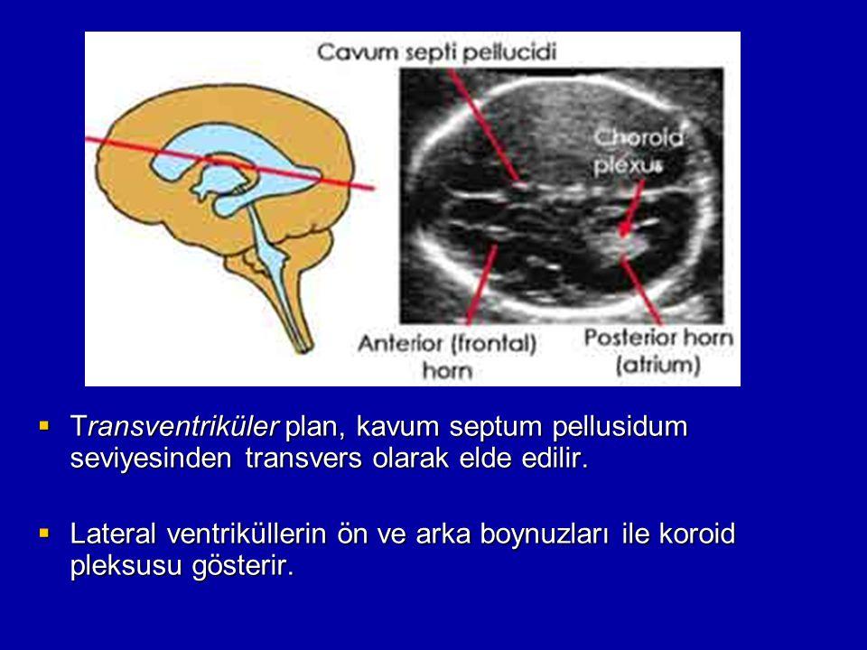  Transventriküler plan, kavum septum pellusidum seviyesinden transvers olarak elde edilir.  Lateral ventriküllerin ön ve arka boynuzları ile koroid
