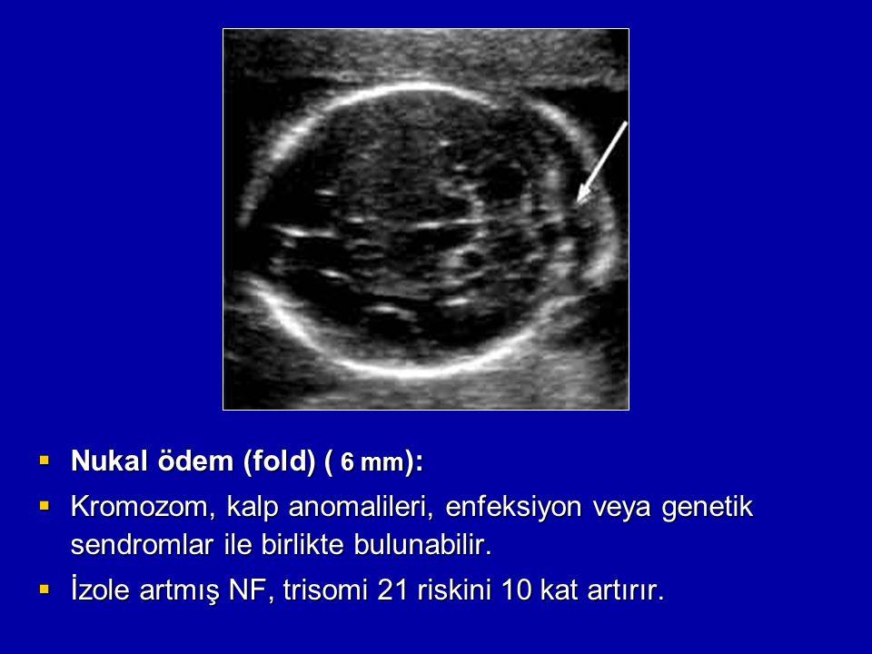  Nukal ödem (fold) ( 6 mm ):  Kromozom, kalp anomalileri, enfeksiyon veya genetik sendromlar ile birlikte bulunabilir.  İzole artmış NF, trisomi 21