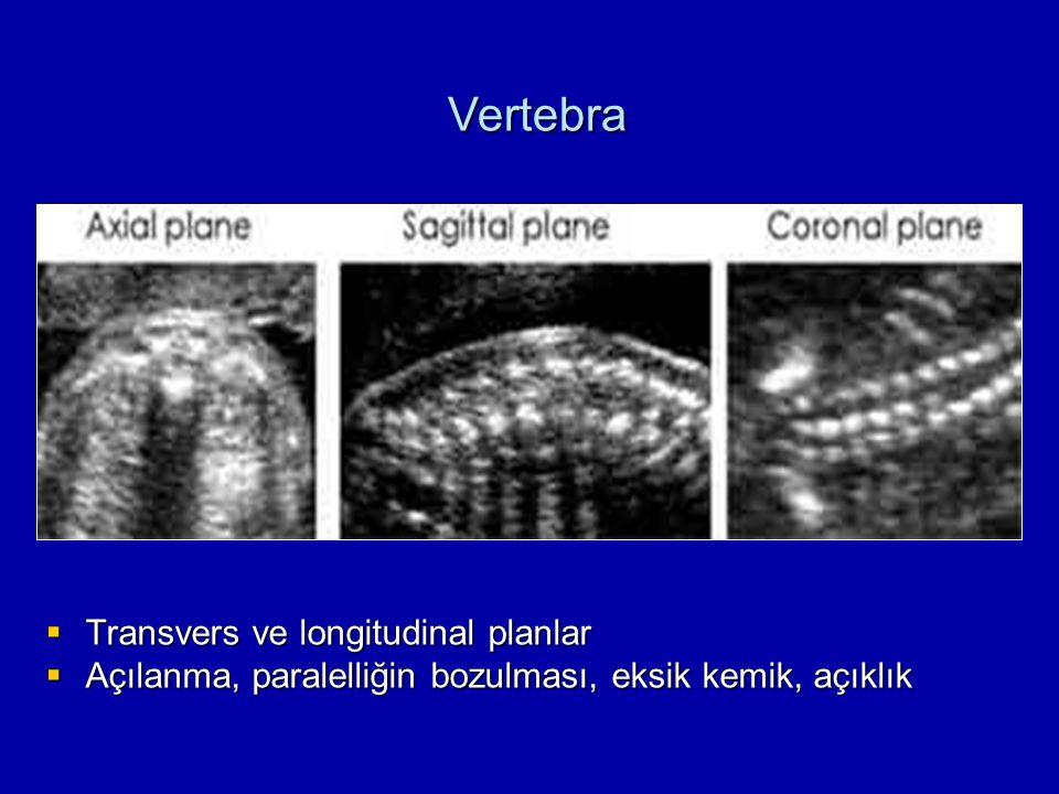  Transvers ve longitudinal planlar  Açılanma, paralelliğin bozulması, eksik kemik, açıklık Vertebra