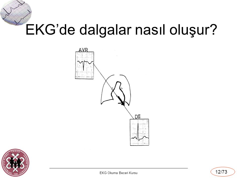 EKG Okuma Beceri Kursu 12/73 EKG'de dalgalar nasıl oluşur?