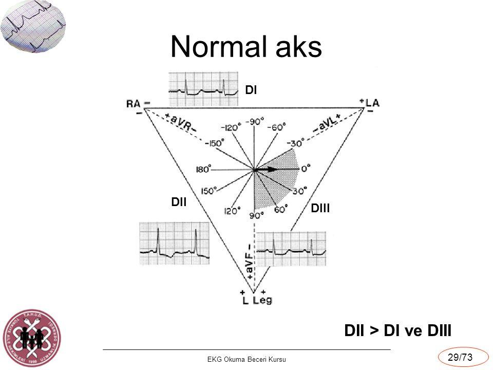 EKG Okuma Beceri Kursu 29/73 Normal aks DII > DI ve DIII DI DII DIII
