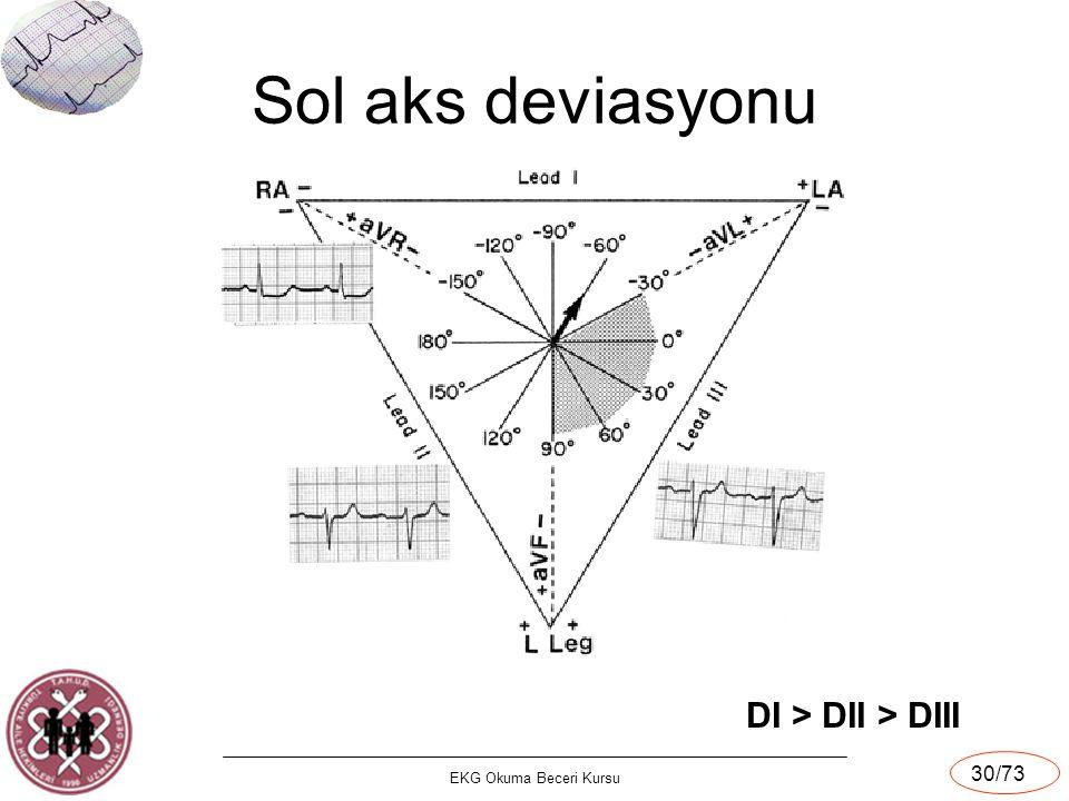 EKG Okuma Beceri Kursu 30/73 Sol aks deviasyonu DI > DII > DIII