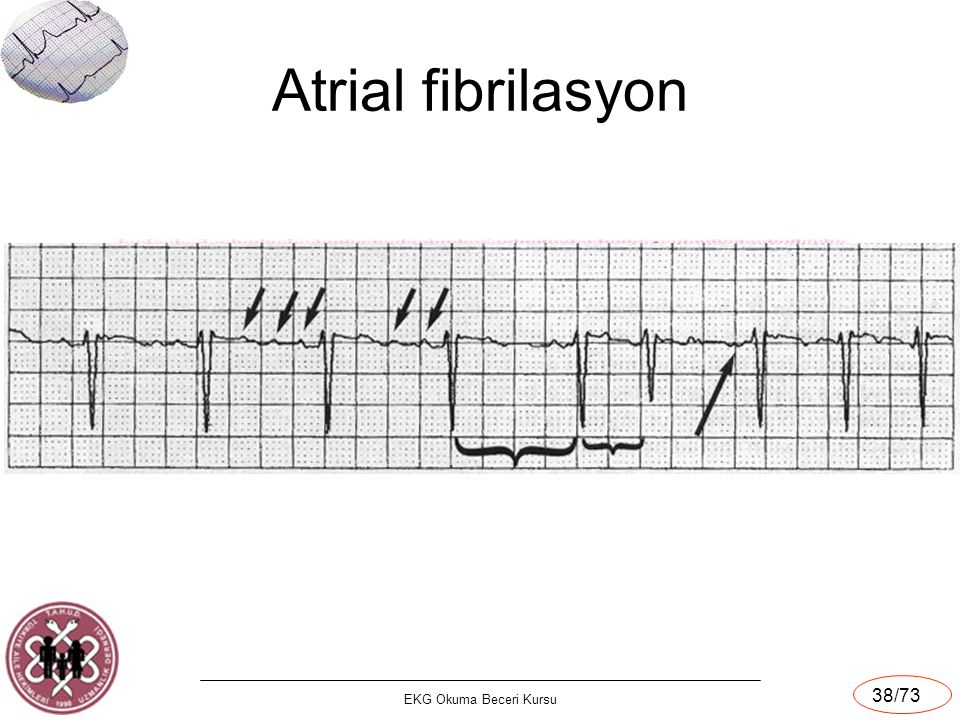 EKG Okuma Beceri Kursu 38/73 Atrial fibrilasyon