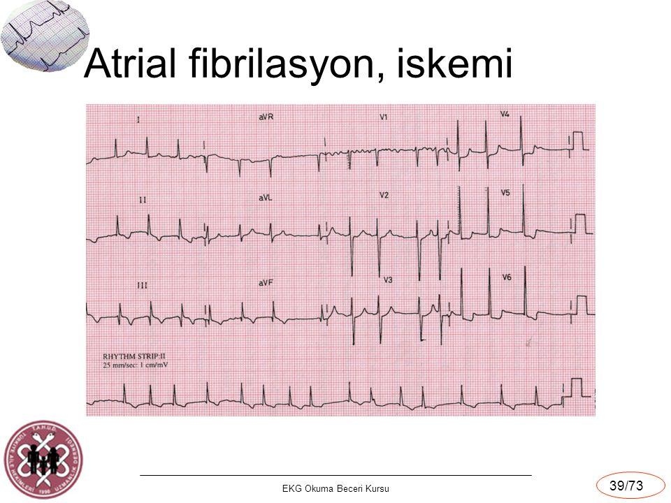 EKG Okuma Beceri Kursu 39/73 Atrial fibrilasyon, iskemi