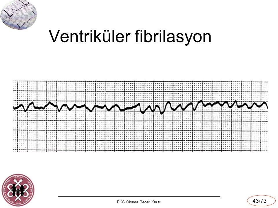 EKG Okuma Beceri Kursu 43/73 Ventriküler fibrilasyon