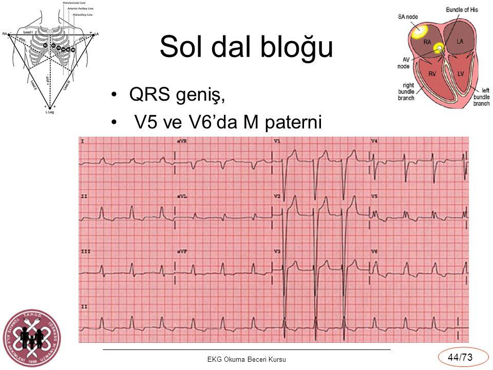 EKG Okuma Beceri Kursu 44/73 Sol dal bloğu QRS geniş, V5 ve V6'da M paterni