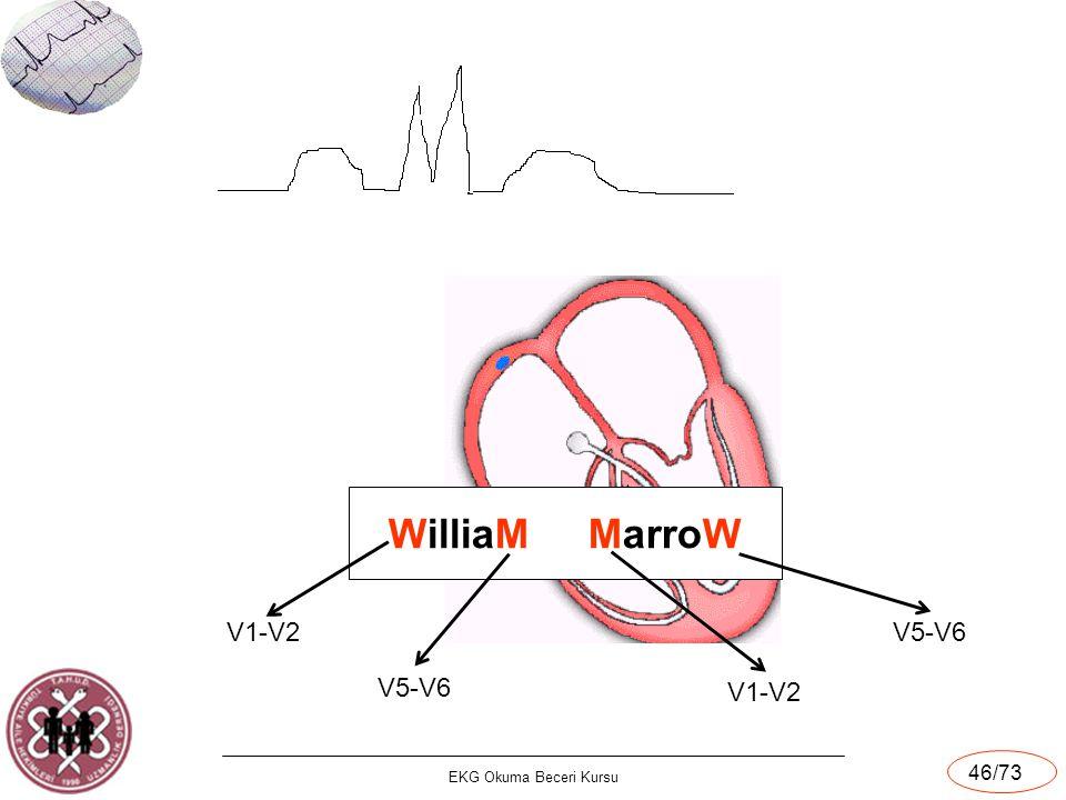 EKG Okuma Beceri Kursu 46/73 X V1 WilliaM MarroW V1-V2 V5-V6 V1-V2 V5-V6
