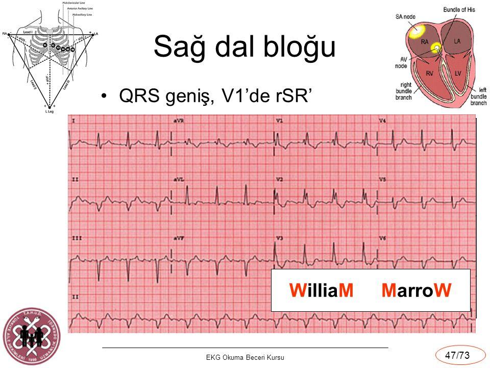 EKG Okuma Beceri Kursu 47/73 Sağ dal bloğu QRS geniş, V1'de rSR' WilliaM MarroW