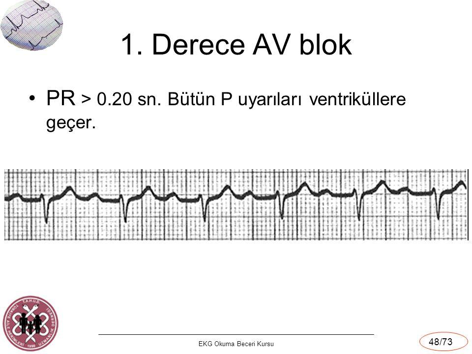 EKG Okuma Beceri Kursu 48/73 1. Derece AV blok PR > 0.20 sn. Bütün P uyarıları ventriküllere geçer.