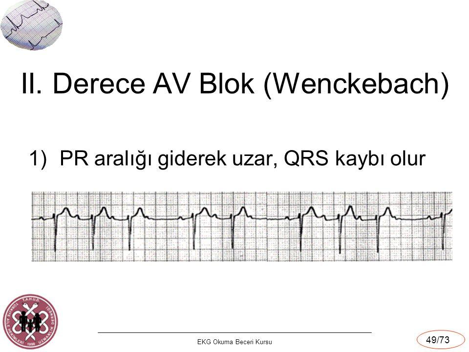 EKG Okuma Beceri Kursu 49/73 II. Derece AV Blok (Wenckebach) 1)PR aralığı giderek uzar, QRS kaybı olur
