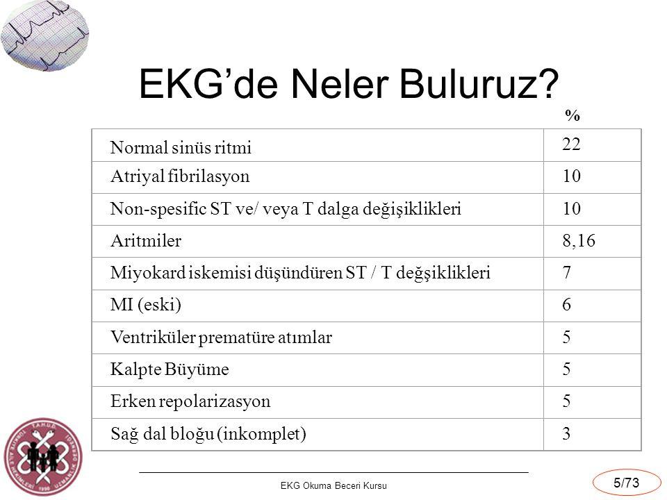 EKG Okuma Beceri Kursu 5/73 EKG'de Neler Buluruz? Normal sinüs ritmi 22 Atriyal fibrilasyon10 Non-spesific ST ve/ veya T dalga değişiklikleri10 Aritmi
