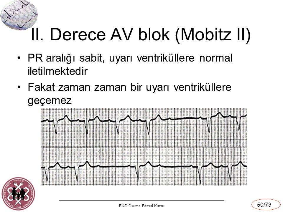 EKG Okuma Beceri Kursu 50/73 II. Derece AV blok (Mobitz II) PR aralığı sabit, uyarı ventriküllere normal iletilmektedir Fakat zaman zaman bir uyarı ve