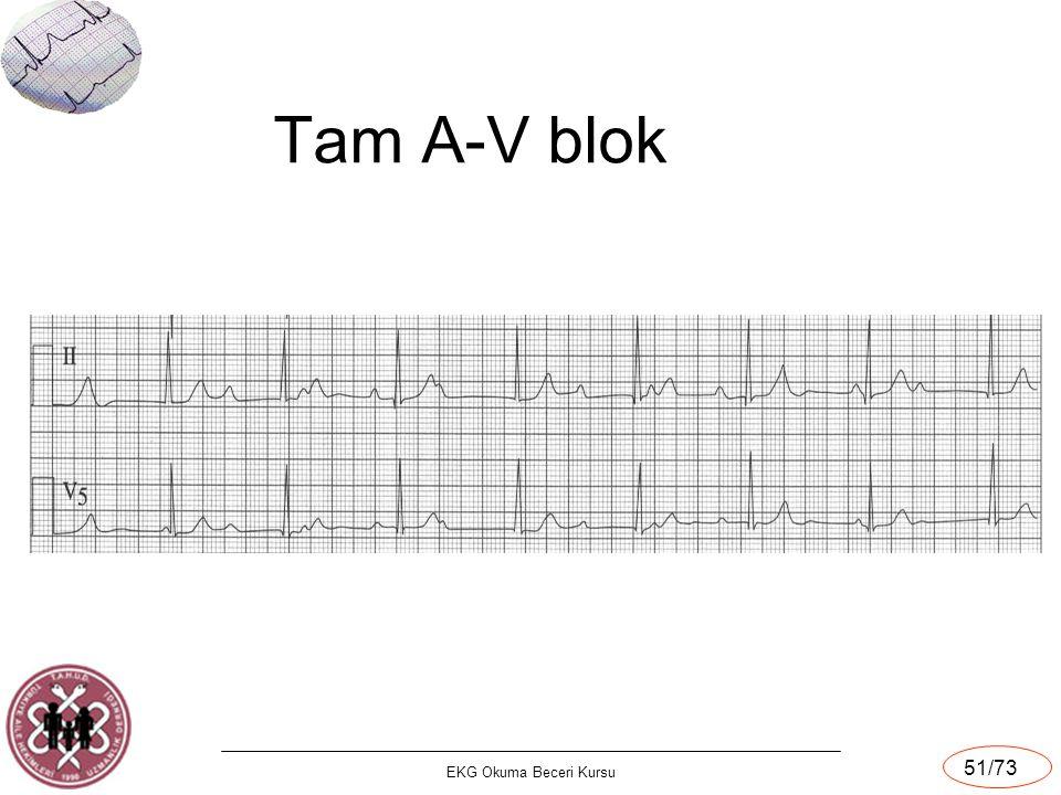 EKG Okuma Beceri Kursu 51/73 Tam A-V blok