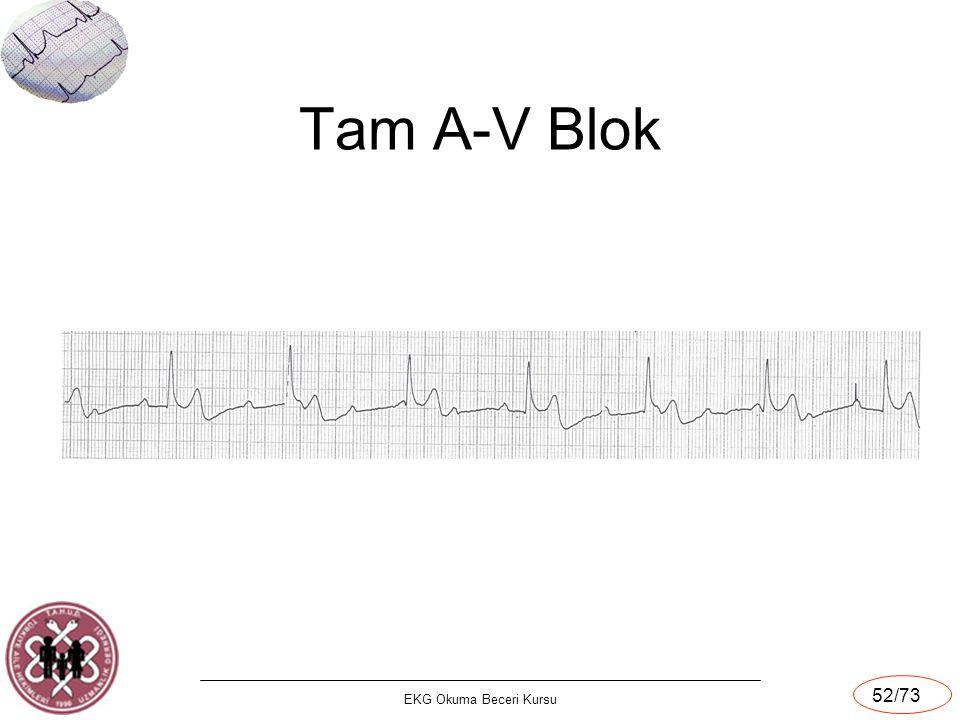 EKG Okuma Beceri Kursu 52/73 Tam A-V Blok
