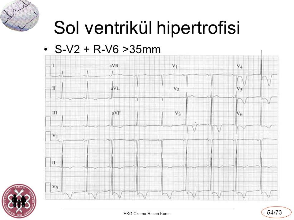 EKG Okuma Beceri Kursu 54/73 Sol ventrikül hipertrofisi S-V2 + R-V6 >35mm