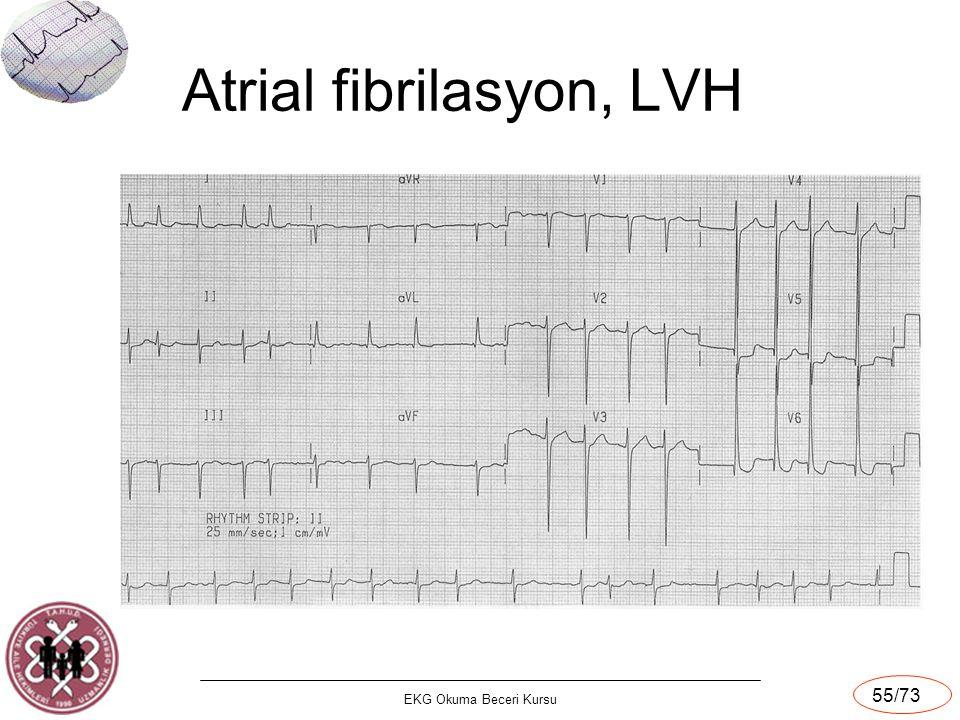 EKG Okuma Beceri Kursu 55/73 Atrial fibrilasyon, LVH