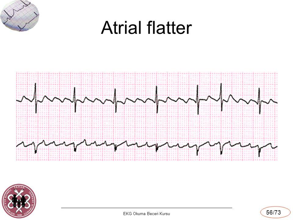 Atrial flatter EKG Okuma Beceri Kursu 56/73