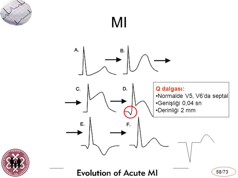 58/73 MI Q dalgası: Normalde V5, V6'da septal Genişliği 0,04 sn Derinliği 2 mm