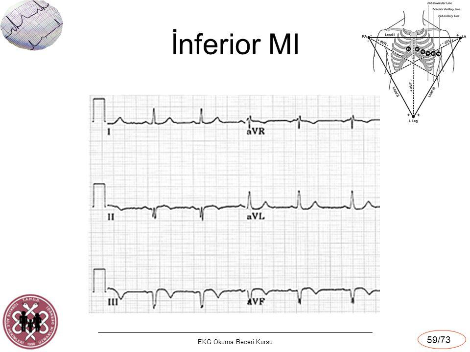 EKG Okuma Beceri Kursu 59/73 İnferior MI