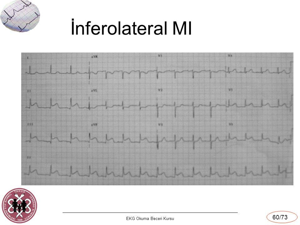 EKG Okuma Beceri Kursu 60/73 İnferolateral MI