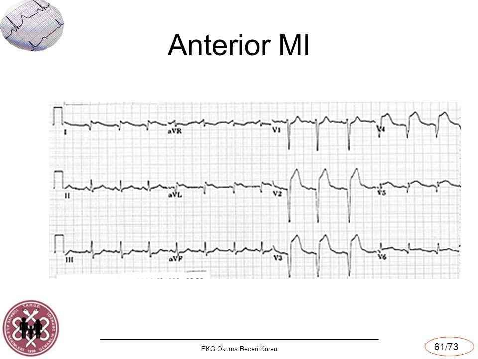 EKG Okuma Beceri Kursu 61/73 Anterior MI