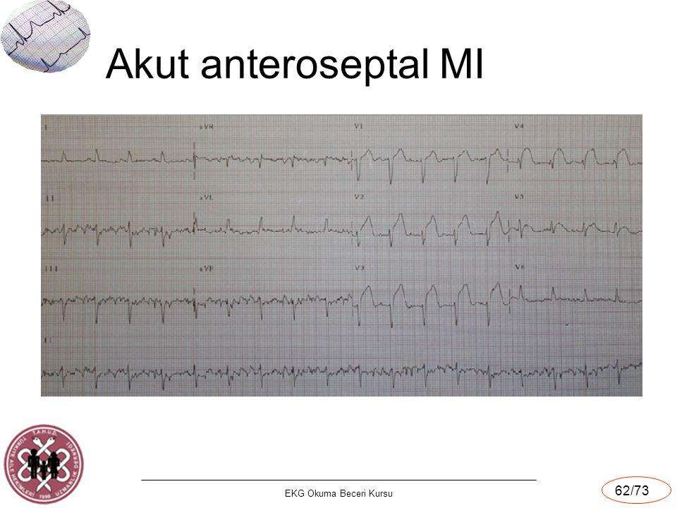 EKG Okuma Beceri Kursu 62/73 Akut anteroseptal MI