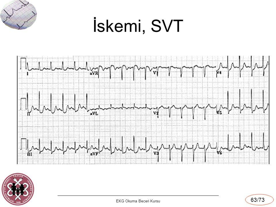 EKG Okuma Beceri Kursu 63/73 İskemi, SVT
