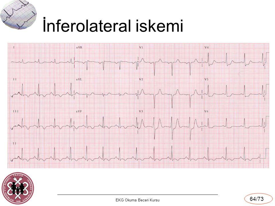 EKG Okuma Beceri Kursu 64/73 İnferolateral iskemi