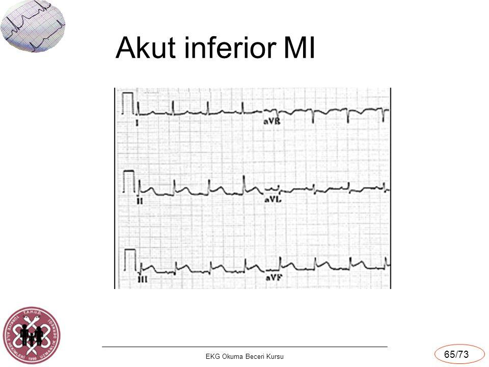 EKG Okuma Beceri Kursu 65/73 Akut inferior MI