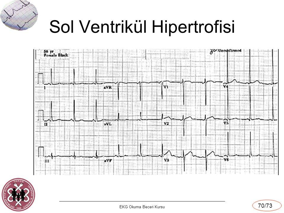 EKG Okuma Beceri Kursu 70/73 Sol Ventrikül Hipertrofisi