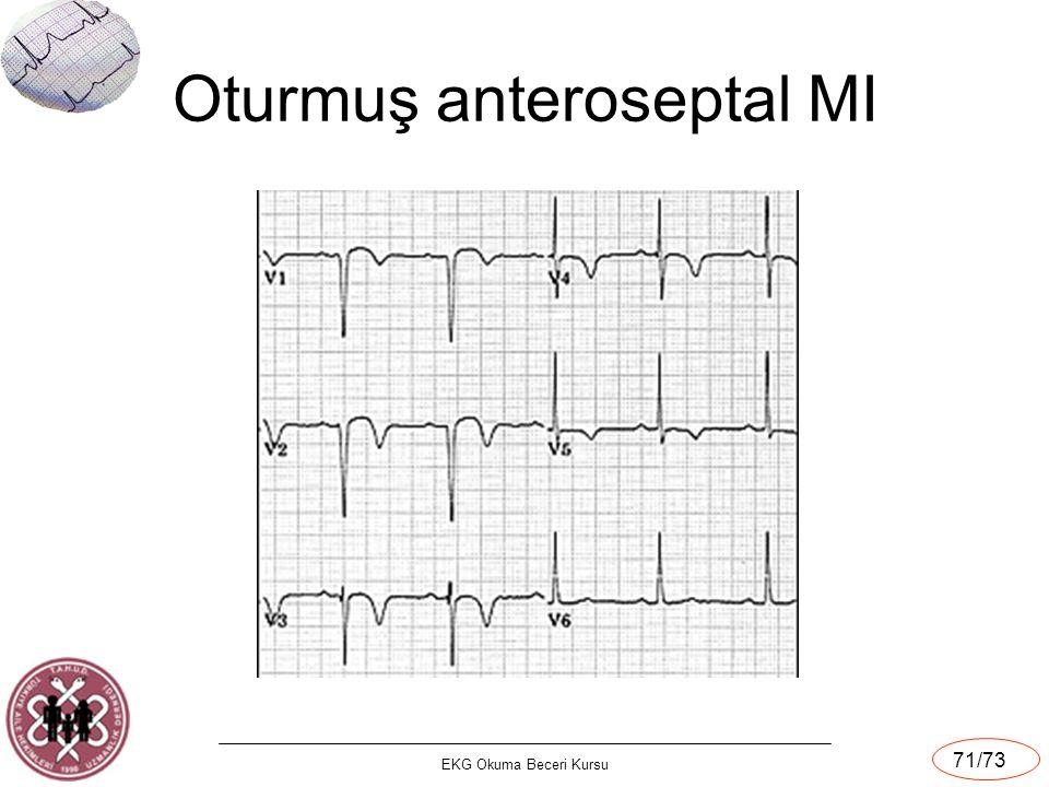 EKG Okuma Beceri Kursu 71/73 Oturmuş anteroseptal MI