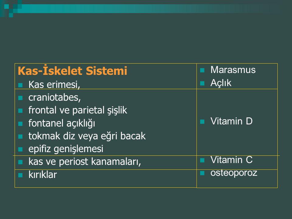 Kas-İskelet Sistemi Kas erimesi, craniotabes, frontal ve parietal şişlik fontanel açıklığı tokmak diz veya eğri bacak epifiz genişlemesi kas ve perios