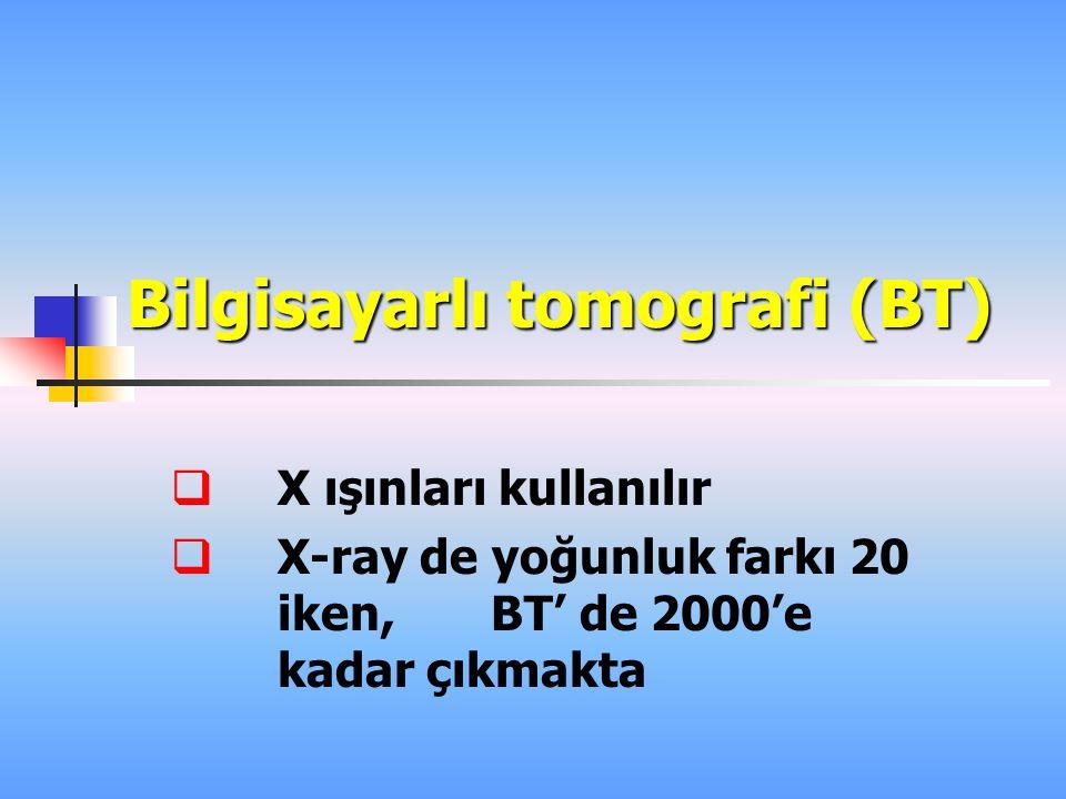 Bilgisayarlı tomografi (BT)  X ışınları kullanılır  X-ray de yoğunluk farkı 20 iken, BT' de 2000'e kadar çıkmakta