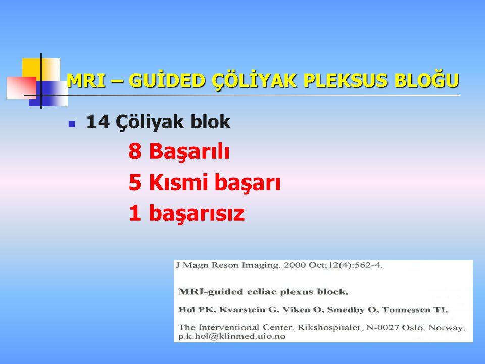 MRI – GUİDED ÇÖLİYAK PLEKSUS BLOĞU 14 Çöliyak blok 8 Başarılı 5 Kısmi başarı 1 başarısız