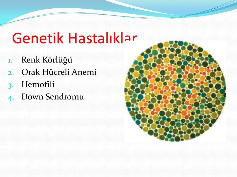 Genetik Hastalıklar 1. Renk Körlüğü 2. Orak Hücreli Anemi 3. Hemofili 4. Down Sendromu