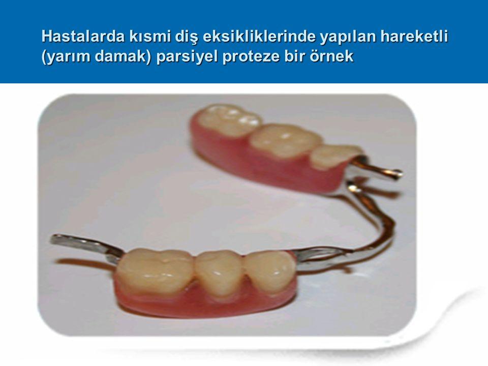 Hastalarda kısmi diş eksikliklerinde yapılan hareketli (yarım damak) parsiyel proteze bir örnek