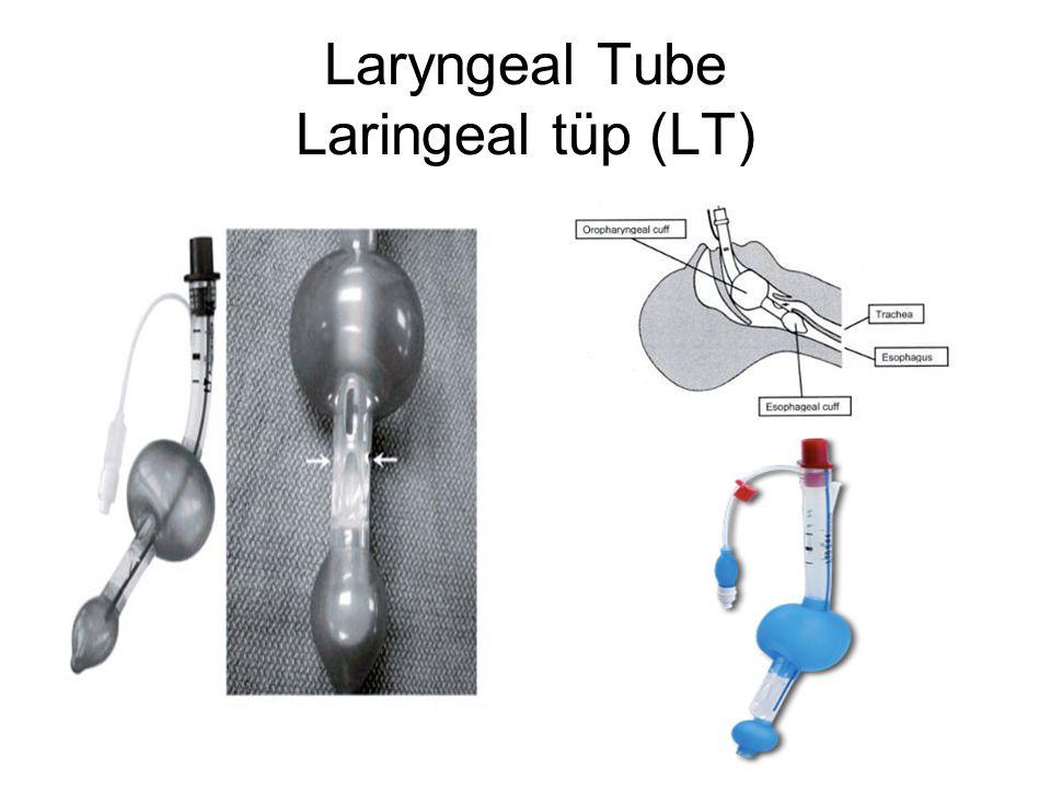 Laryngeal Tube Laringeal tüp (LT)