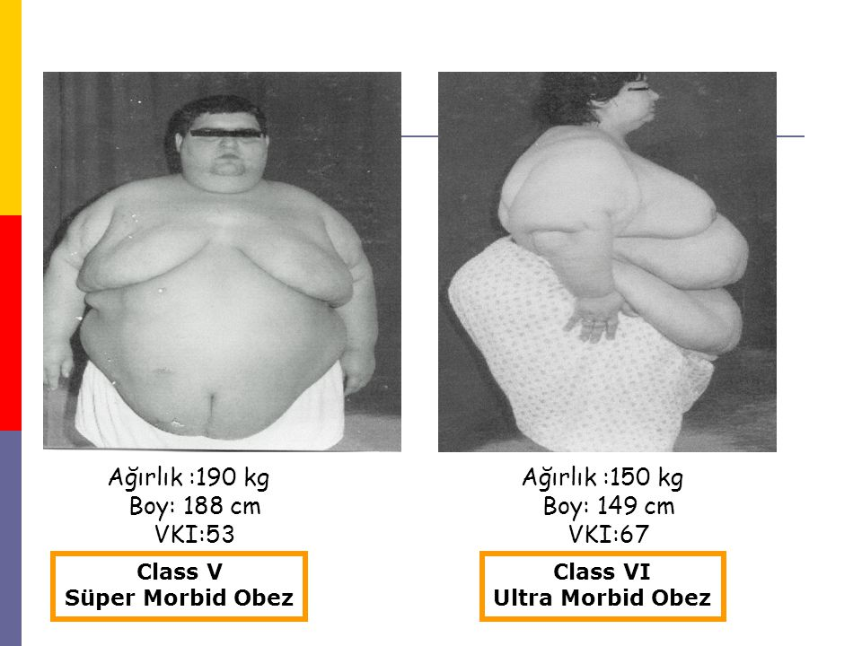 Ağırlık :190 kg Boy: 188 cm VKI:53 Ağırlık :150 kg Boy: 149 cm VKI:67 Class V Süper Morbid Obez Class VI Ultra Morbid Obez
