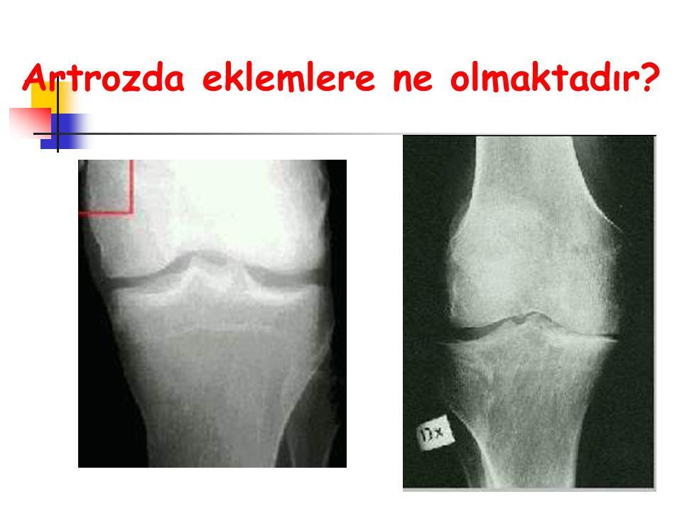  Eklem kıkırdağı, kemik, bağlar gibi yapılarda doğumsal ya da sonradan gelişen bozukluklar  Eklemlerin üzerindeki yüklerin ya da mesleki nedenlere bağlı olarak eklemlerin normal çalışma koşullarının değişmesi.