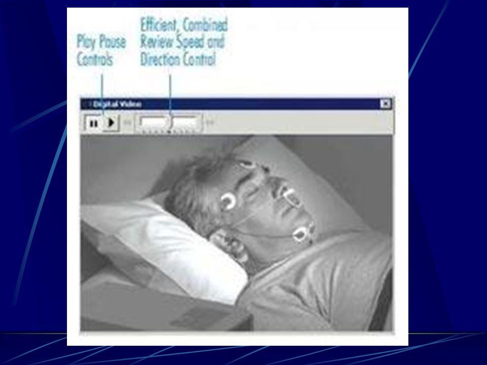 TANI YÖNTEMLERİ  EEG, EOG, EMG- submental  Oro-nasal hava akımı  Torako-abdominal hareketler  Oksijen satürasyonu  EKG  EMG- tibial  Vücut pozi