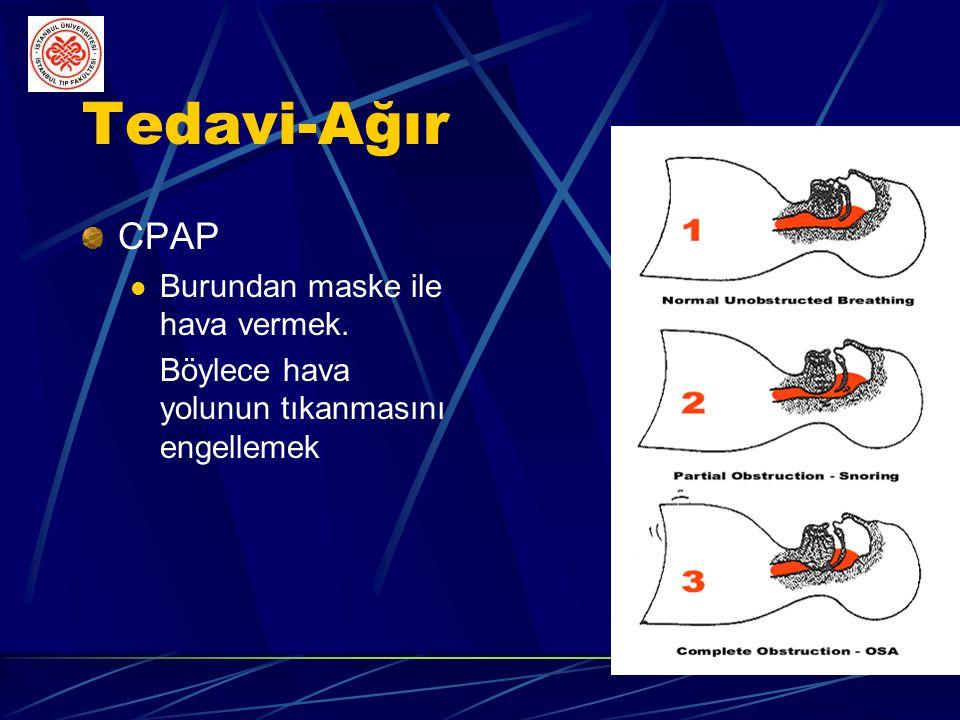 CPAP'ın Etki Mekanizması Nazal ve orofarengeal yoldan sürekli pozitif basınçlı hava vererek üst solunum yolu kollapsını engeller