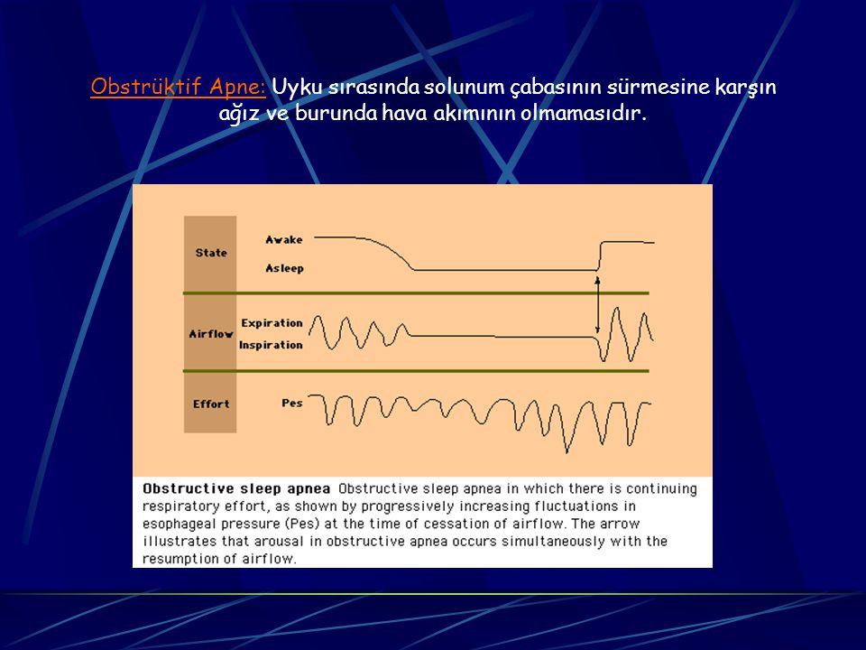 Tanım Uykuda üst solunum yolunun tekrarlayıcı daralma ve tıkanmaları. Bunlara bağlı uykunun bölünmesi (arousal) Uyku kalite bozukluğu. Gündüz uykululu