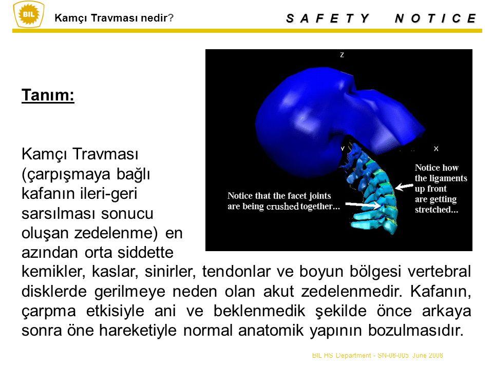 S A F E T Y N O T I C E BIL HS Department - SN-08-005 June 2008 Tanım: Kamçı Travması (çarpışmaya bağlı kafanın ileri-geri sarsılması sonucu oluşan zedelenme) en azından orta şiddette Kamçı Travması nedir.