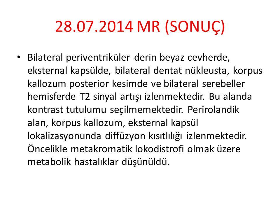 28.07.2014 MR (SONUÇ) Bilateral periventriküler derin beyaz cevherde, eksternal kapsülde, bilateral dentat nükleusta, korpus kallozum posterior kesimde ve bilateral serebeller hemisferde T2 sinyal artışı izlenmektedir.